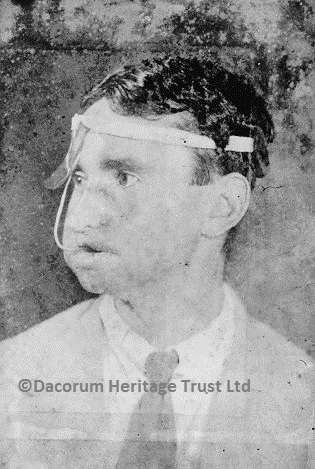 Reg Evans with a device strapped to his head and inserted into his mouth | Dacorum Heritage Trust